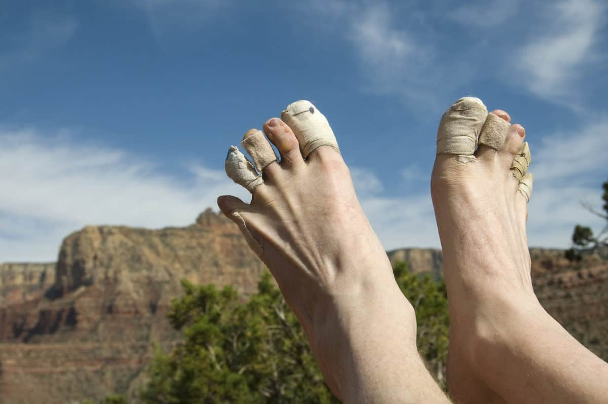 how to prevent blisters while hiking